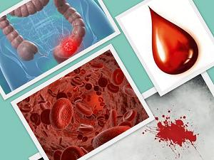 Почему появляется кровь из заднего прохода и как лечить неприятный симптом? 7 основных причин кровотечения