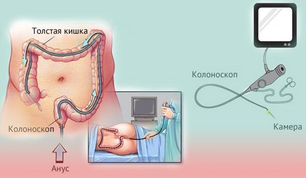 Как проводится колоноскопия кишечника