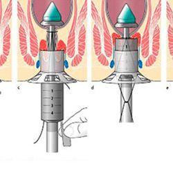 operatsiya longo pri gemorroe12 - A longo műtét az aranyér ellen a javallatok és ellenjavallatok módszerének lényege