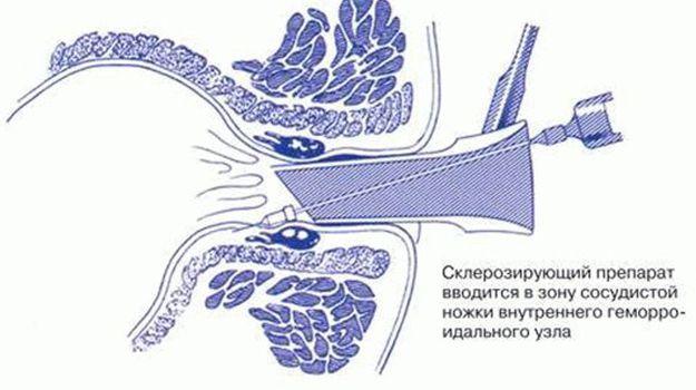 Склеротерапия при геморрое как проходит