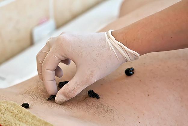 Лечение геморроя пиявками👌: куда ставить, отзывы пациентов