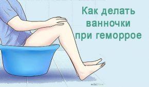 Миниатюра к статье Как делать сидячие ванночки при геморрое?